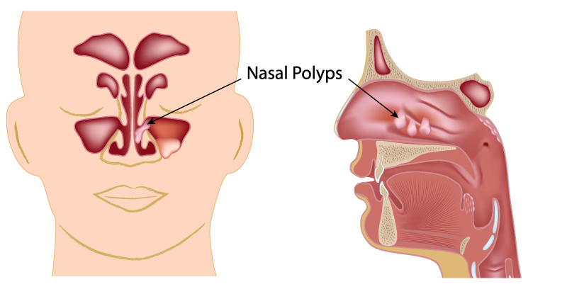 anatomy of nasal polyps