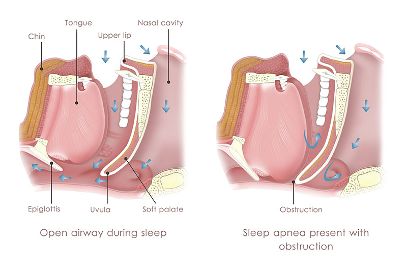 anatomy of the pharynx and airway collapse during sleep apnoea